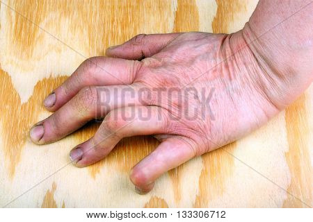 Woman rheumatoid arthritis deformed, hand. Wooden background