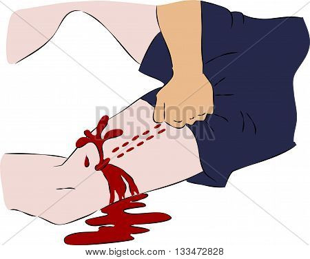 First aid - close blood flow from wound on leg. Vector