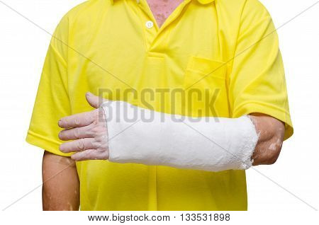 Man with his broken left arm. Isolated on white background