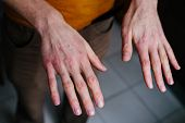 High Angle View Of Hands Suffering The Dryness On The Skin And Deep Cracks On Knuckles. Eczema Or Ps poster