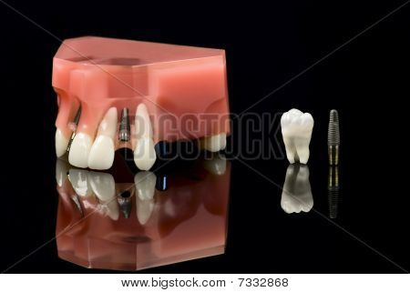 Human Wisdom Tooth, Dental Titanium Implant And Plastic Teeth Model