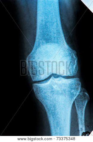 Knee X-ray