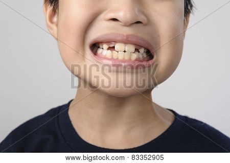 Boy Checking Tooth By Mirror