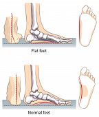 stock photo of medical condition  - Vector illustration of flat and normal feet - JPG