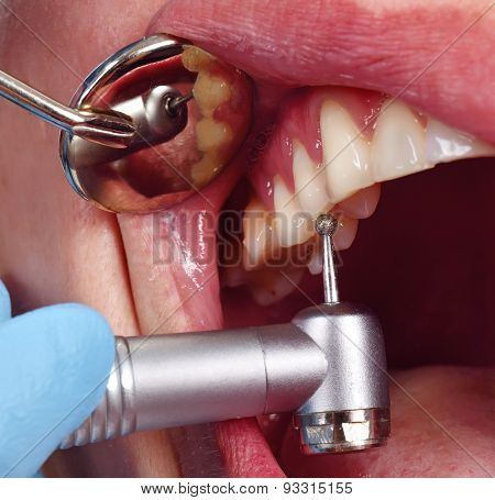 Dentist Using Dental Drill