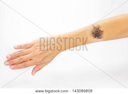 Black Birthmark On Arm On White Background