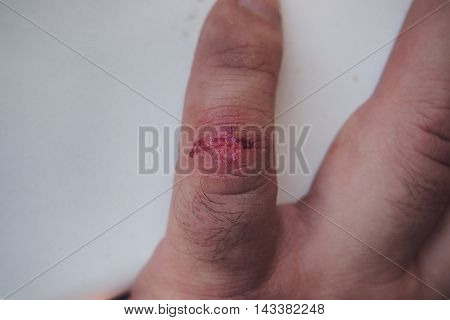 Trauma thumb. The fresh wound on his little finger.