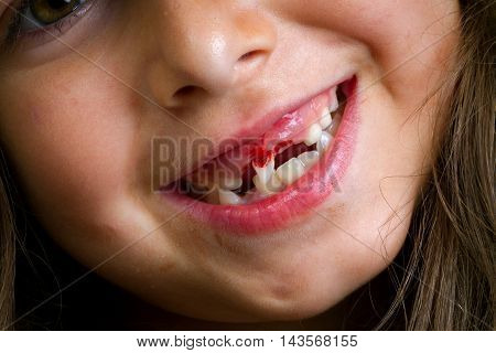 A little girl grins after loosing one front tooth. The second front tooth is loose enough that she is turning it sideways for the camera. The view is mostly mouth with a hint of her smiling eye.