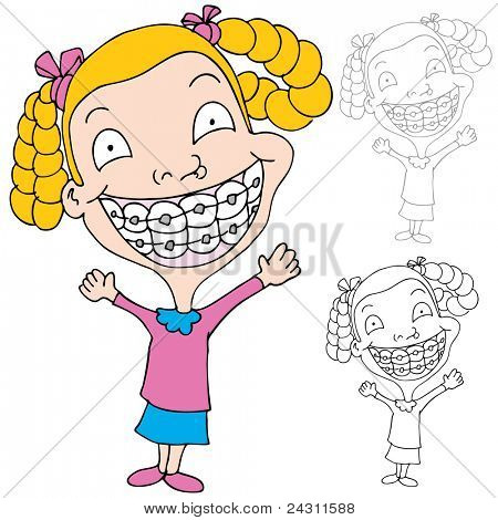 An image of a girl wearing braces.