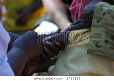 Measles Vaccination Of A Child