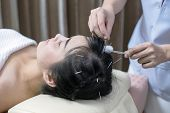 Therapist Giving Acupuncture Treatment Needle On The Head For Hair Transplant  Treatment At The Heal poster