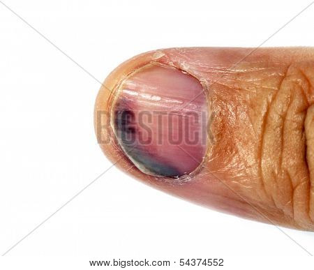 thumb injury, blue-black thumb nail: subungual hematoma following nail avulsion stress injury.