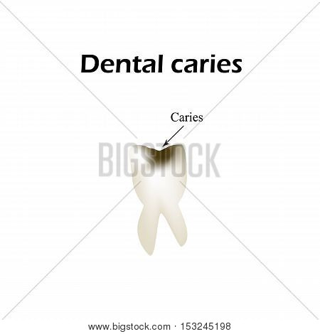 Deep tooth decay. Vector illustration on isolated background.