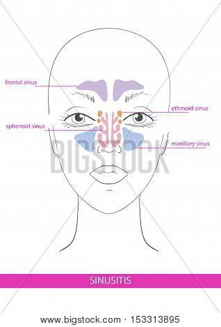 nasal sinus. inflammation. Vector illustration hand drawn scheme face