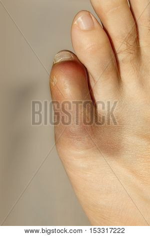 Broken little toe with severe inflammation and bruising. Injury arthritis rheumatism disease concept.