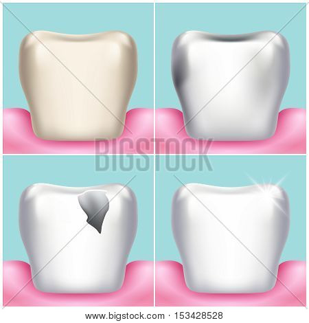 Dental problems, caries, plaque and gum disease, healthy tooth vector illustration. Stomatology and treat unhealthy teeth illustration