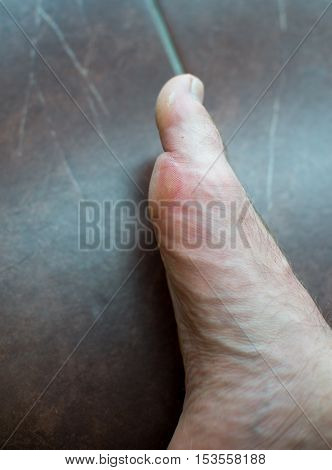 Close Up On Blister On Foot Of A Male