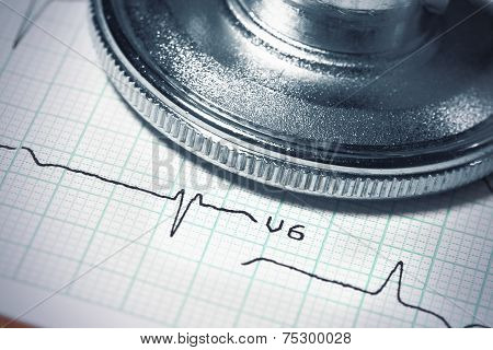 Ecg And Stethoscope. Close-up Photo.