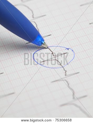 Make Notes On The Ecg