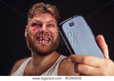 Man with bruise takes selfie