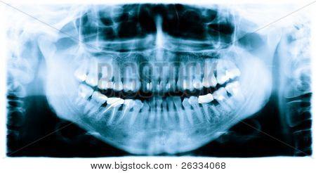 Teeth and jaw  dental  x-ray image