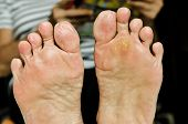 Wart Under Foot Can Treatment By Salicylic Acid, Wart Verrucas Plantar. Fasciitis Wart On Foot. Dece poster