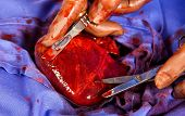 stock photo of open heart surgery  - Close up of heart opeartion under sterile conditions - JPG