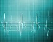 pic of electrocardiogram  - Image of heart beat picture on a colour background - JPG