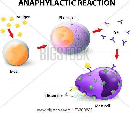 Mechanism of allergy.