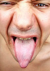 foto of syphilis  - Bacterial infection disease tongue in a man - JPG