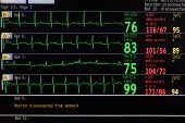 pic of icu  - LCD monitor in ICU for several patients - JPG