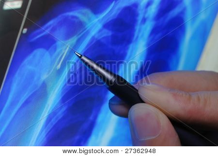 pen showing X-ray picture of human on screen