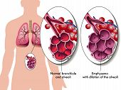 stock photo of bronchus  - medical illustration of the effects of the Pulmonary emphysema - JPG