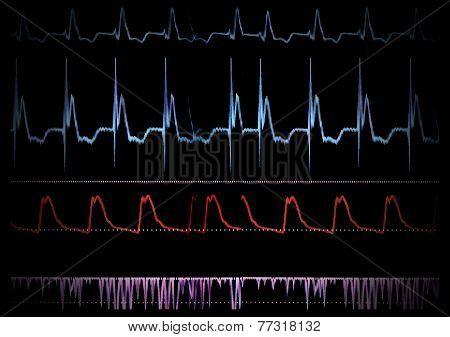Screen Medical Monitor.