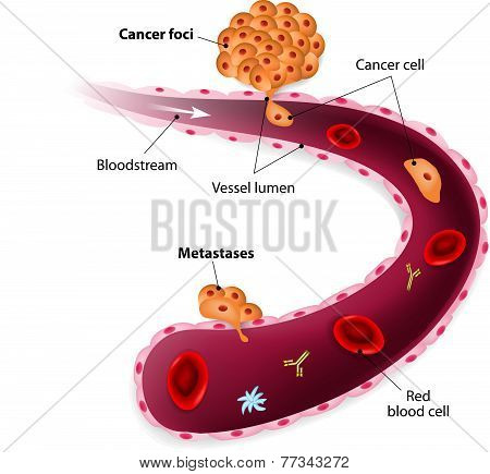 Cancer cells, cancer foci and Metastases