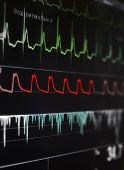 pic of pacemaker  - Cardiomonitor with a bright fragment of waves - JPG