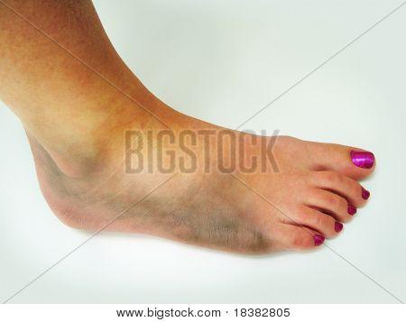 Hematoma del tobillo