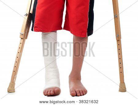 Fratura de perna