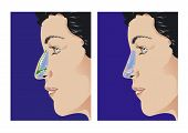 picture of nostril  - Schematic sketch of rhinoplasty - JPG