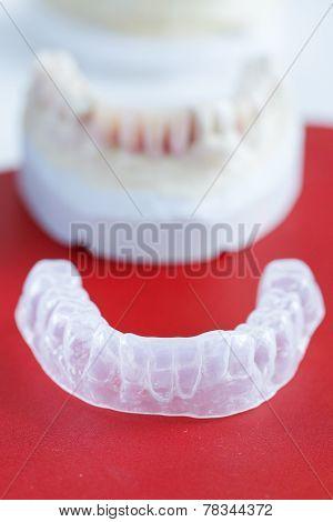 Invisalign, Invisible Plastic Teeth Aligner
