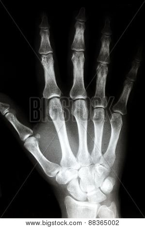 X Ray Of The Right Hand