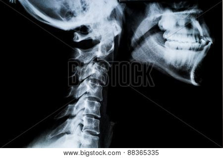 X Ray Neck And Jaw