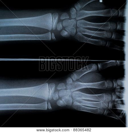 X Ray Of Two Hands And Forearm
