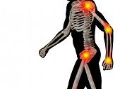 pic of osteoporosis  - Conceptual 3D human man anatomy or health design - JPG