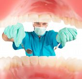 picture of plaque  - Dentist takes care of the dental plaque - JPG