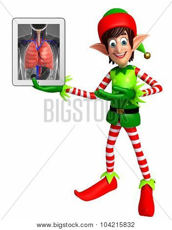 Elves With Anatomical Xray