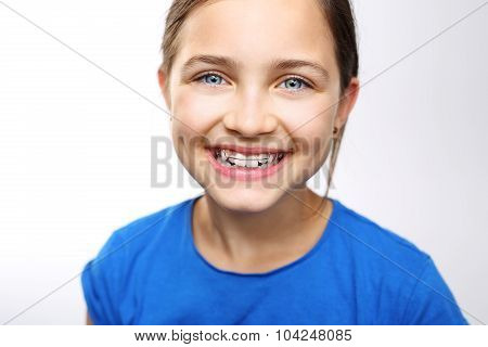 Portrait of a little girl with orthodontic appliance .