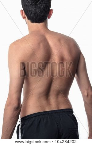 Scoliosis, Thin Man On His Back, No Shirt. Curvature Of The Spine Visible
