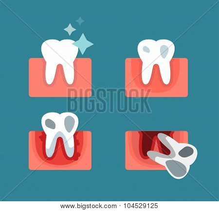 Periodontal disease stage steps vector illustration