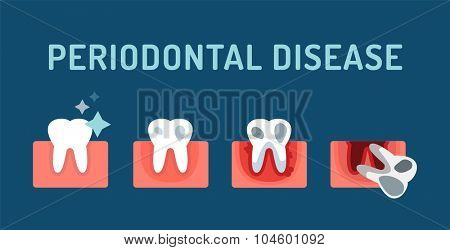 Periodontal disease stage steps vector illustration. Dental tooth problems vector concept. Toothache, tooth dead, bad tooth care. Doctors dentists professional illustration. Medical dental tooth